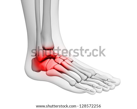 3d rendered illustration - painful ankle - stock photo
