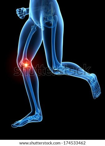3d rendered illustration - painful joggers knee