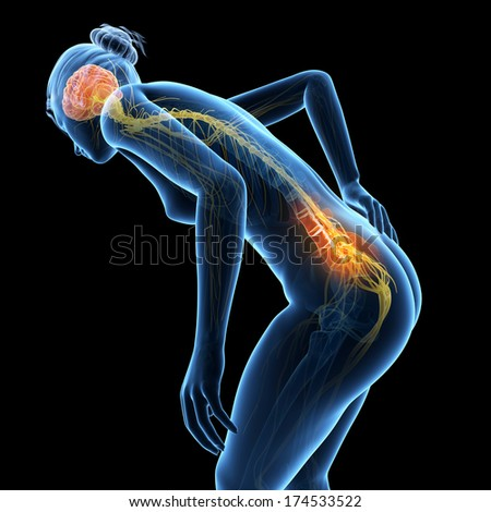 3d rendered illustration - woman having acute pain in the back - stock photo