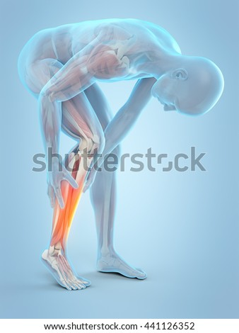 3d rendered, medically accurate 3d illustration of calf pain - stock photo
