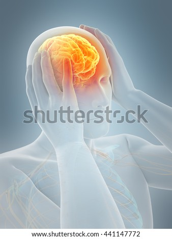 3d rendered, medically accurate 3d illustration of headache/ migraine - stock photo