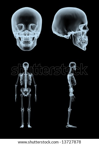 3d rendered x-ray skull and skeleton in two views - stock photo