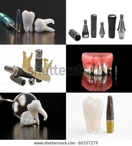 Dental background. Set of dentistry images - stock photo