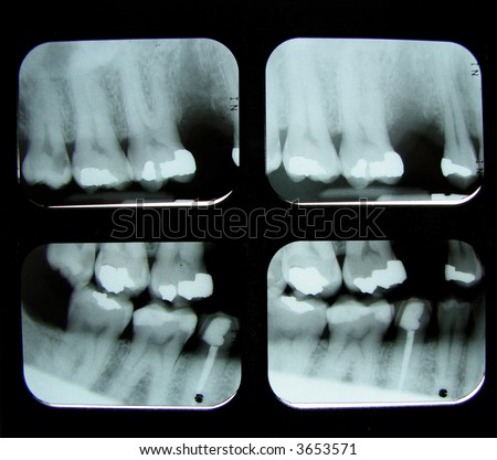 4 dental x-rays showing a missing tooth, root canal, and fillings in molars and bicuspids - stock photo