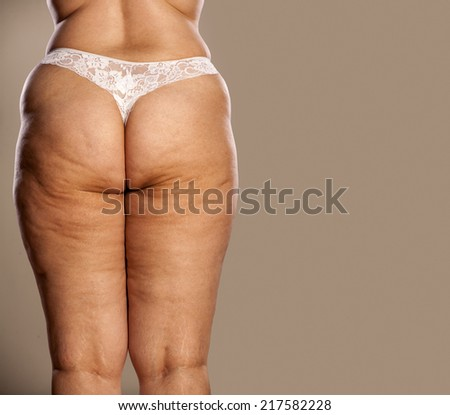 Mature women with cellulite asses