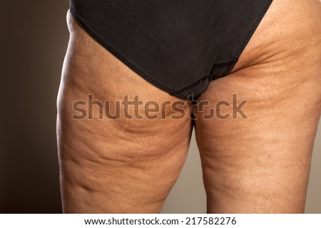 female buttocks with cellulite and stretch marks - stock photo