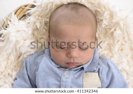 2 months old sleeping baby with skin problems - stock photo