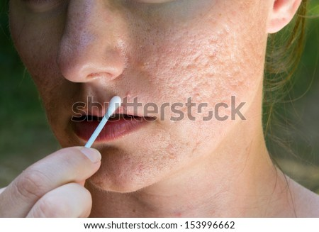 Pimple and acne scars on a girls face - stock photo