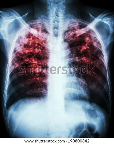 """Pulmonary tuberculosis""  Film chest x-ray show interstitial infiltration both lung due to mycobacterium tuberculosis infection - stock photo"