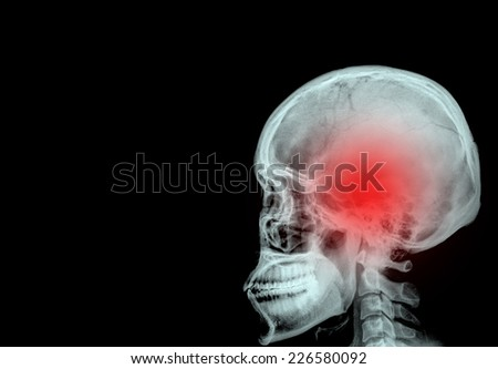 """Stroke"" (cerebrovascular accident). Film x-ray skull lateral with stroke and blank area at left side - stock photo"
