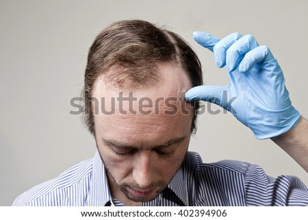 A balding Caucasian male with a receding hairline against a light grey background. - stock photo