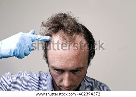 A balding Caucasian male with a receding hairline against a light grey background with hand blue gloved hand pointing to skull and hairline. - stock photo