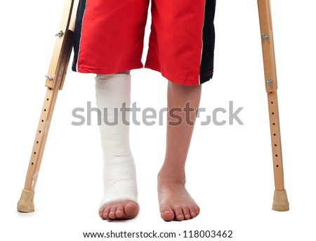 A boy with a right leg fracture struggles to walk with two crutches. - stock photo