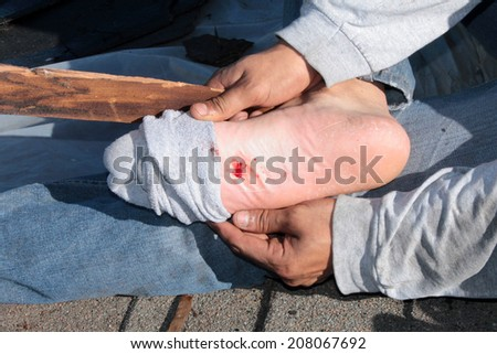 A construction worker shows a puncture wound in his foot after stepping on a nail on a construction site. Stepping on a nail hurts a lot and can cause nerve damage . time for a tetanus shot - stock photo