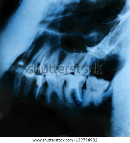 a dental x-ray detail - stock photo