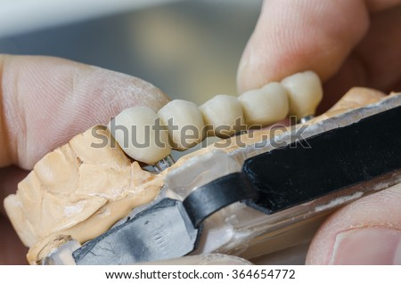 A dentist / dental technician placing the fixed partial denture ( the dental bridge) on the implants. - stock photo