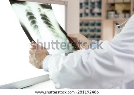 A doctor checking x-ray photo of patients. Xray of lungs. hospital. medical check.  - stock photo