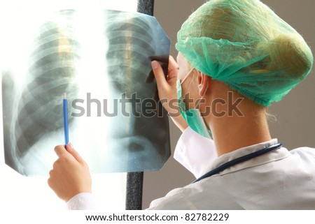 A female doctor examining an x-ray picture, back-view - stock photo