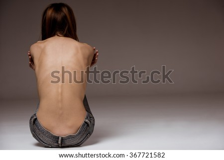 A girl with anorexia turned back, spine and ribs visible - stock photo