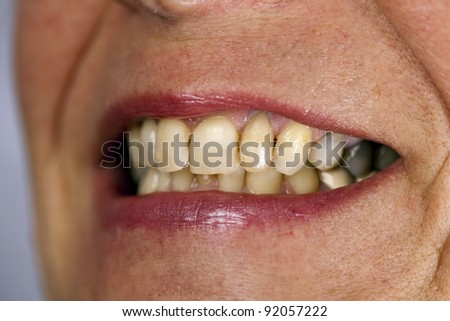 a macto of the tooth of a women - stock photo
