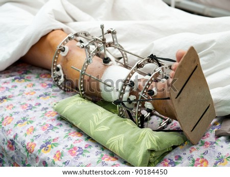 a male leg with an Ilizarov's external fixator on it - stock photo