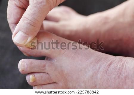 A man checks his athletes foot dry skin. - stock photo