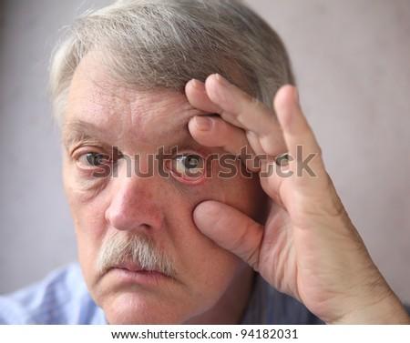 a man checks his bloodshot eyes - stock photo
