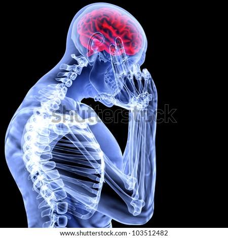 a man with a headache under x-ray. - stock photo