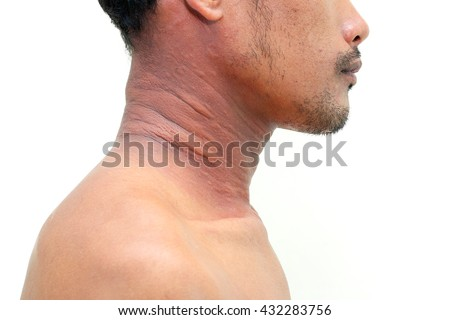 A man with dermatitis problem of rash ,Allergy rash and Health problem.