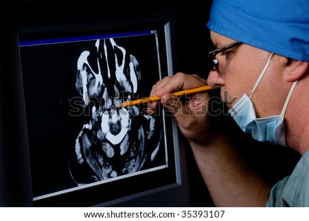 A medical doctor examining a CTT Scan. - stock photo