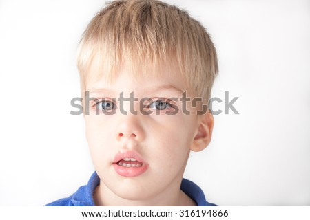 a portrait of a sick toddler boy with running nose and red eyes, isolated on white background - stock photo