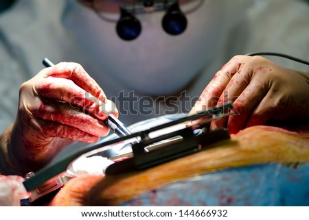 a real cardiac surgery, a closeup shot - stock photo