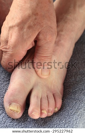 A senior man with a fungal infection on some of his toes - stock photo