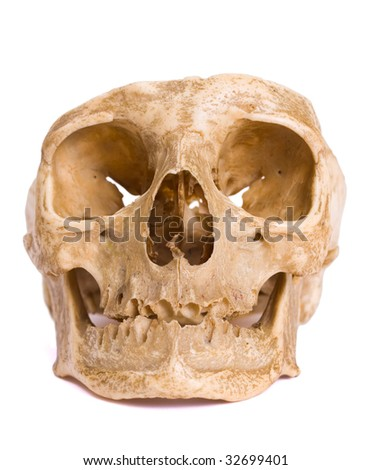 A skull isolated on white with a cut-down calvaria (the top of the skull).