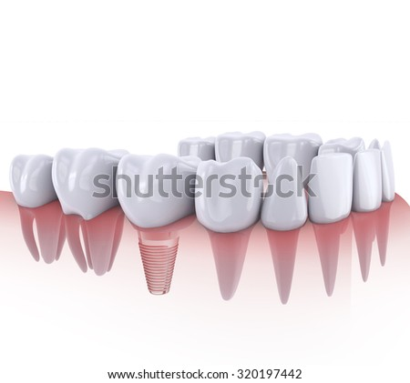 a teeth and dental implant 3d render - stock photo