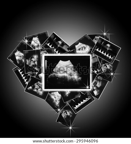 a the child in the picture ultrasound - stock photo