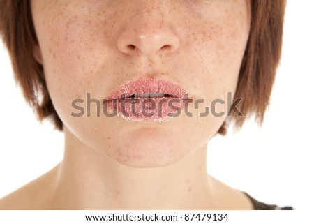 A woman's lips covered in white powdered sugar with a serious expression.