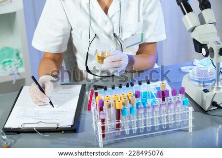 A woman wearing white coat and white medical gloves holding a urine sample in his hand - stock photo