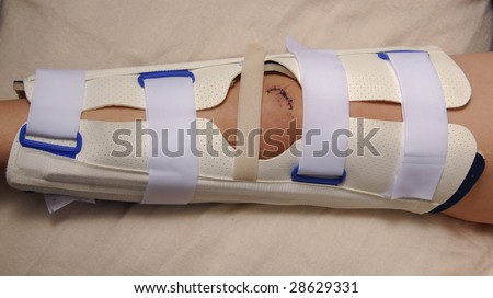 A wound in repaired using medical stitches (sutures). - stock photo