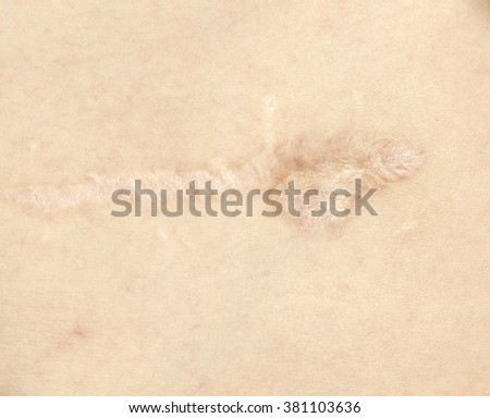 a wound on the skin  - stock photo