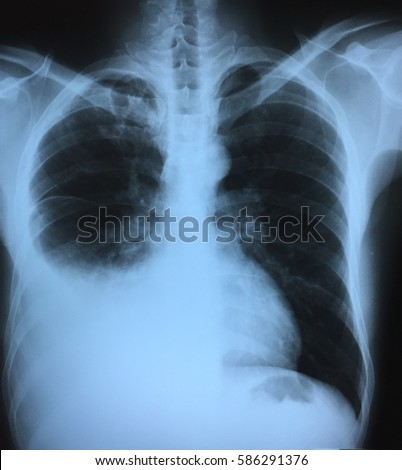 Bronchial asthma concept