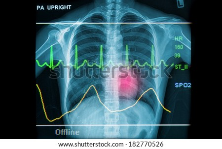 Abstract health and medical backgrounds showing x-ray image and EKG line - stock photo