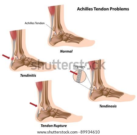 Achilles tendon problems - stock photo