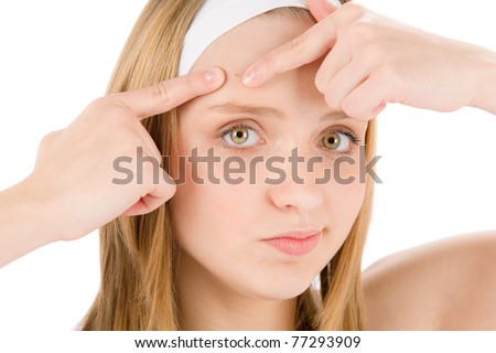 Acne facial care teenager woman squeezing pimple on white - stock photo