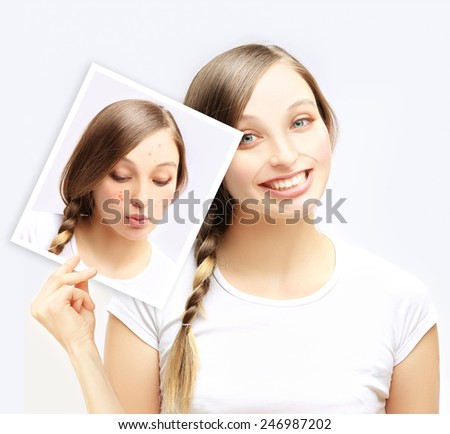 Acne.Happy teenage girl  showing a  photo of yourself with acne - stock photo
