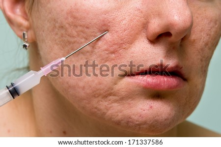 Acne treatment with injection on girl's chin