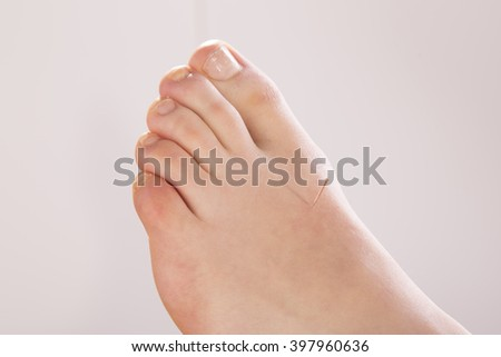 Acupuncture in foot and toes - stock photo