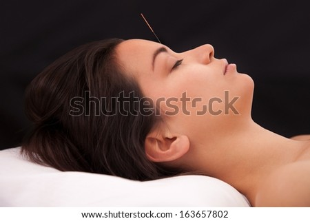 Acupuncture needle in the head on black background - stock photo