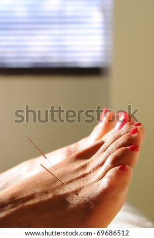 acupuncture needles in a foot with red toenails and window behind