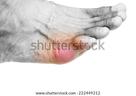 acute foot pain - stock photo
